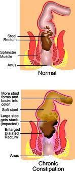 Constipation Bowel Management Fasting